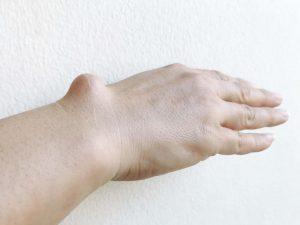 bone-tumours-symptoms-treatment