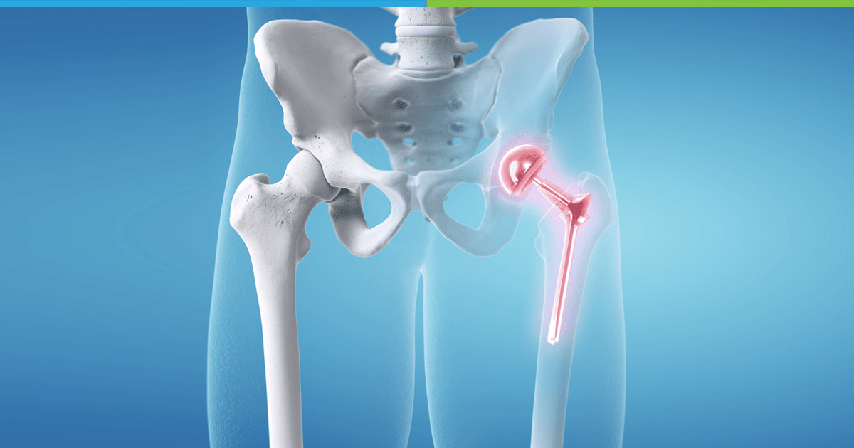 Hip Replacement and Knee Replacement Surgery